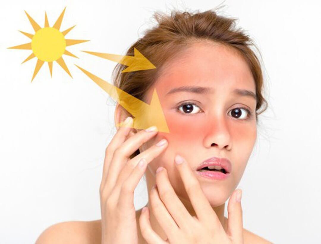 Nên dùng kem chống nắng vật lý hay hóa học sẽ tốt cho da?