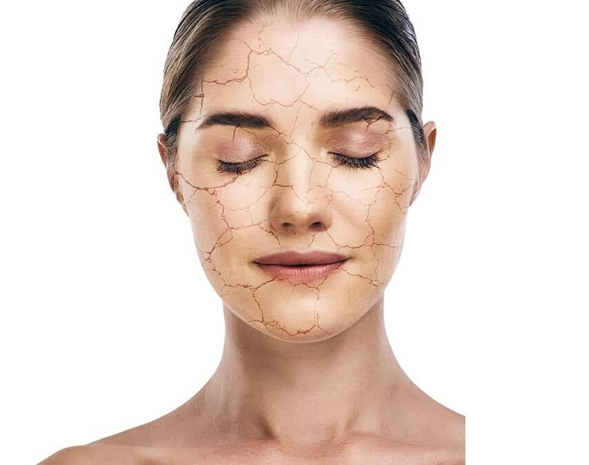 Top 10 cách trị da bị khô bong tróc cho hiệu quả ngay tức thì