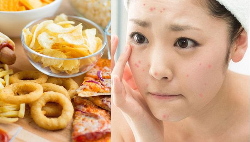 Top 8 thực phẩm không nên ăn khi bị mụn kẻo mụn chi chít mặt