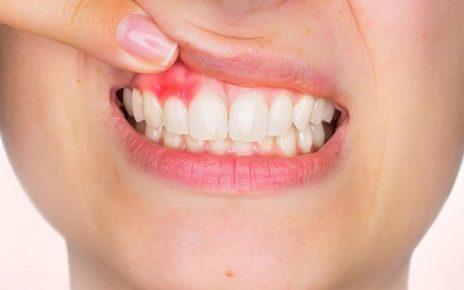 Top 10 nguyên nhân chảy máu chân răng ai cũng có thể gặp phải