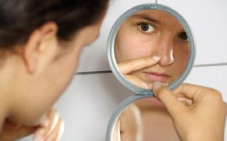 5 sản phẩm trị mụn đầu đen ở mũi, má cằm, phòng cả vết thâm mụn