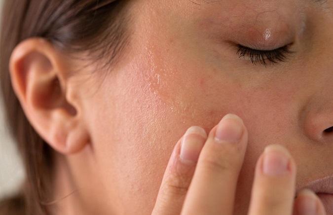 2 cách xác định loại da mặt và cách chăm sóc đúng cho từng loại da