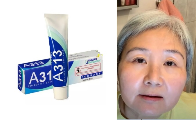 Kem retinol A313 Pommade, thích hợp cho người mới